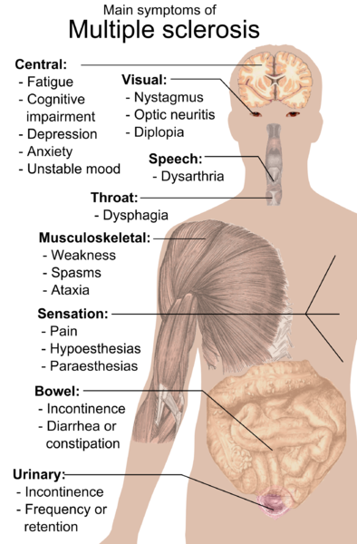 Symptoms_of_multiple_sclerosis